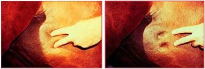 Edema por Anemia Infecciosa Equina (AIE)